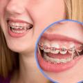 الوان تقويم الاسنان: الموضه والموسوعة الكامله