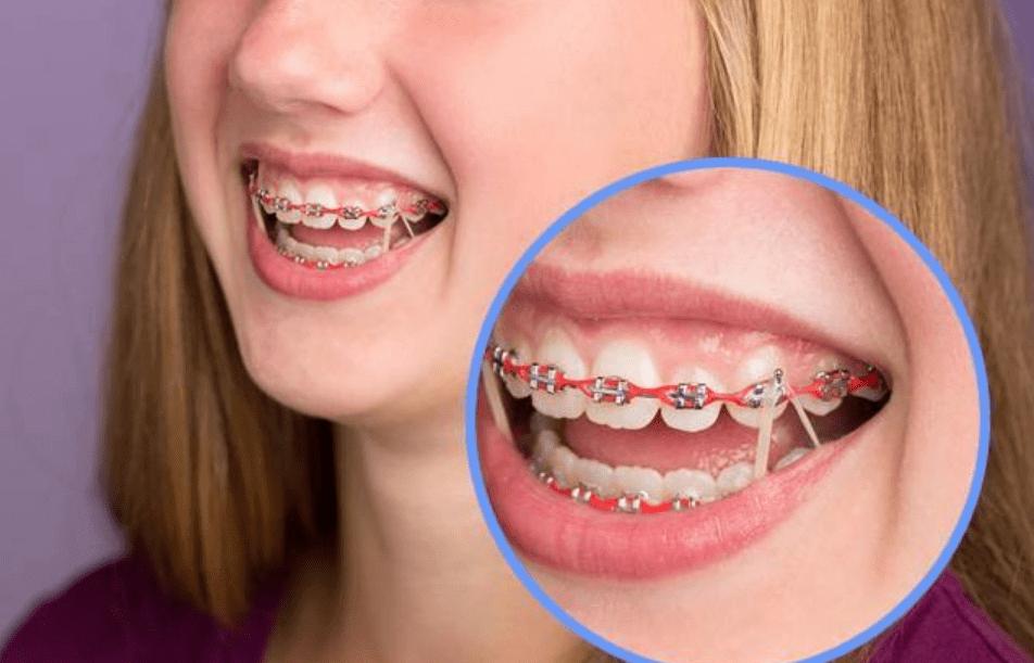 الوان تقويم الاسنان: الموضة و الموسوعه الكامله